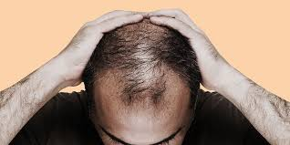 images of hair causes of hair loss how to stop hair loss for men