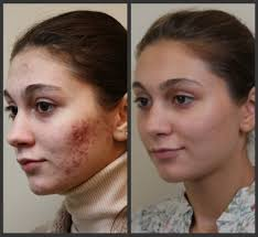 Face Mapping Pimples Will Accutane Work For Hormonal Acne Prix Viagra Pharmacie