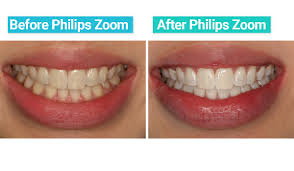 pro light dental whitening system reviews 3 women review the philips zoom teeth whitening treatment