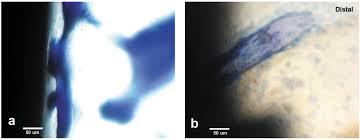 metals free full text titanium implant osseointegration