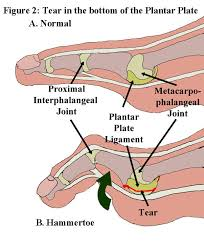Anatomy Of A Foot Something Terrible Is Afoot A Look At Russell Okung U0027s Sprain And