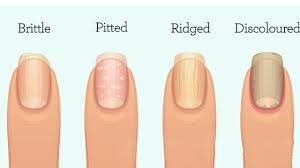 this is what your fingernails are warning you about inflammation