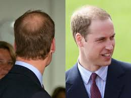 haircut for thinning crown collections of hairstyles for balding crown cute hairstyles for
