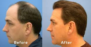 Injection In Scalp For Hair Growth Hair Loss Restoration U2013 Vitality Mens Clinic
