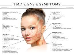 eyes sensitive to light treatment dentist in houston tx tmj treatment