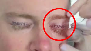 crazy eye tattoo removal warning youtube