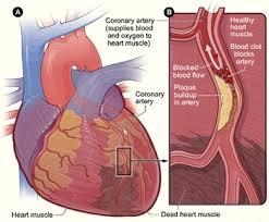 asthma u0026 heart attack study com