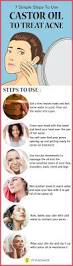 Face Mapping Acne 25 Best Ideas About How To Treat Acne On Pinterest Treating