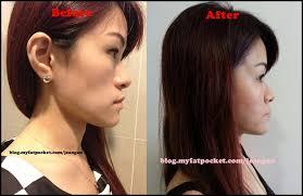 hairstyle to avoid sunken face sunken cheeks