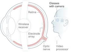 What Causes Blindness In Humans The Four Principal Causes Of Blindness