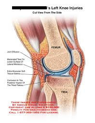 Anatomy Of Knee Injuries Left Knee