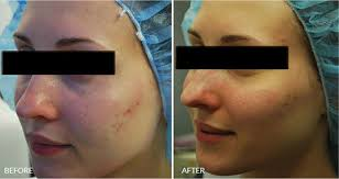 light therapy for acne scars fractora acne scar treatment nyc fade acne scars