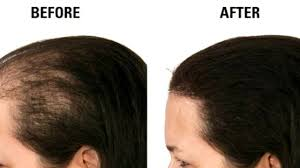 kalonji for hair growth kalonji magical hair oil for hair growth stop hairfall and