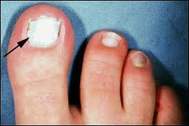 what causes white toenails and how do i fix them