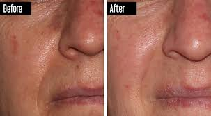 intense pulsed light therapy capital region vein and laser centre ipl intense pulse light