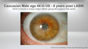 avellinolab usa what is granular corneal dystrophy youtube