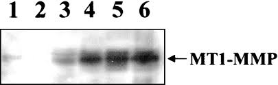 overexpression of membrane type matrix metalloproteinase 1 gene