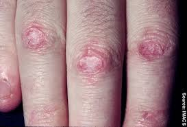 Treatment For Rug Burn How To Get Red Of Friction Burn Scars Doctor Answers