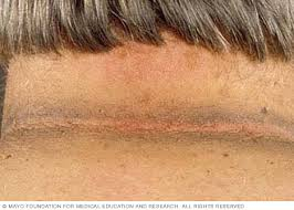 acanthosis nigricans symptoms and causes mayo clinic