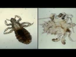 What Kills Bed Bugs And Their Eggs Diatomaceous Earth Naturally Kill Bed Bugs Youtube