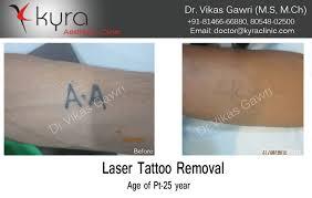 laser tattoo removal in ludhiana punjab amritsar jalandhar