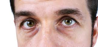 Symtoms Of Blindness Eye Swelling Causes Symptoms U0026 Treatment