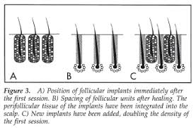 black wiry hair aesthetics of hair transplantation 1997