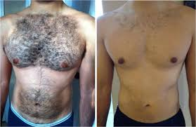 100 how long does laser tattoo removal take to heal three