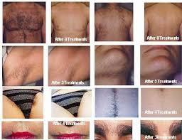 male pubic hair removal photos bikini lin and pubic hair removal by thanaka bio device