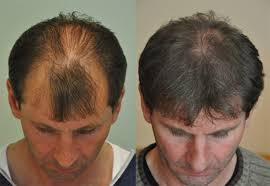 fue hair transplant fue hair transplant cost procedure