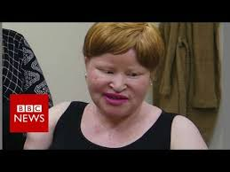 Albino Meme - tanzania albino attacks my neighbour hacked off my hands bbc
