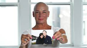 percentae of men with thinning hair at 60 women open up about hair loss from alopecia areata age genes