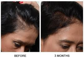 womans hair thinning on sides male or female pattern baldness treatments idea health