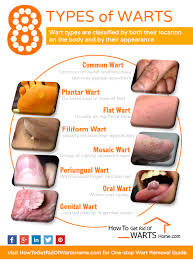 How Do You Get Planters Warts by Types Of Warts Do You Know All 8 Different Kinds Of Them