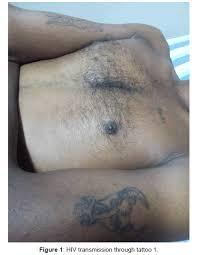 hiv transmission through tattoos omics international