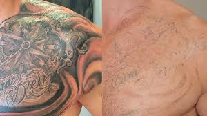 knowing about laser tattoo removal technique u2013 link data services