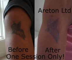 tattoo removal excision online training