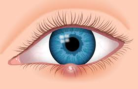 Is There A Cure To Color Blindness 7 Eye Stye Facts Identify And Cure Your Stye Sty