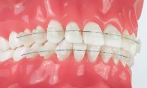 nickel free braces the different types of braces dougherty orthodontics