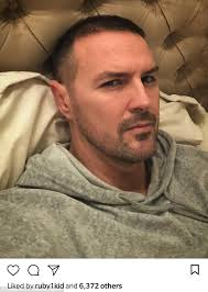 paddy mcguinness hair implants paddy mcguinness and nicole appleton unfollow each other daily