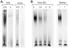 a 43 kda tdp 43 species is present in aggregates associated with