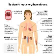 magnesium deficiency in systematic lupus erythematosus genus