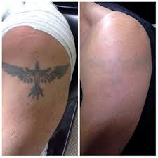 out of ink laser tattoo removal home facebook