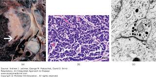 lepidic pattern meaning pathology of lung tumors respiratory an integrated approach to