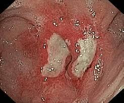 obr cky endoscopic image of gastric ulcer obr 1 endoskopický ná