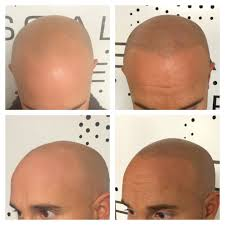 scalp micropigmentation a convincing alternative to wigs and surgery