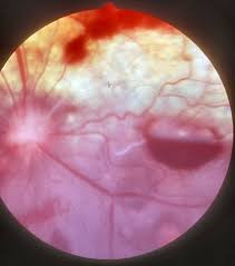 Retinal Detachment Emergency Medicine And Critical Care Merck