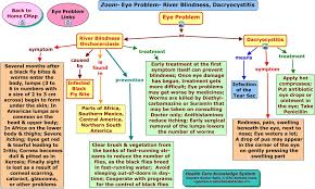 Symtoms Of Blindness Zoom Eye Problem River Blindness Dacryocystitis Html
