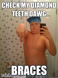 Braces Memes - check my diamond teeth dawg braces wannabe gangster kid quickmeme