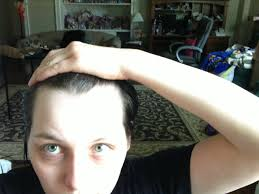 m shaped hairline